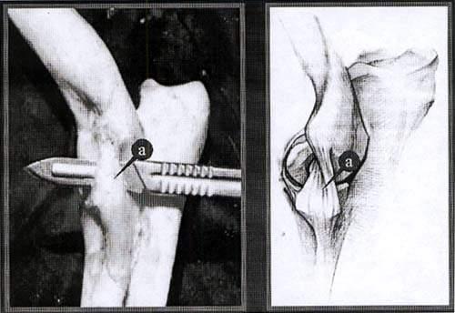 Латеральная коллатеральная связка локтевого сустава.