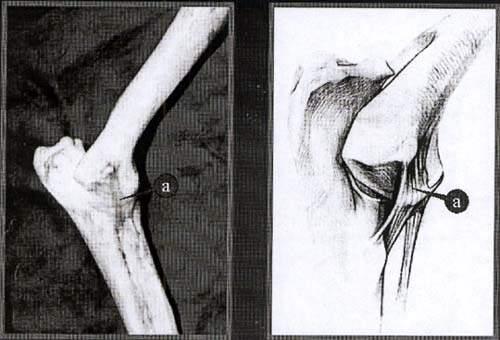 Медиальная коллатеральная связка локтевого сустава