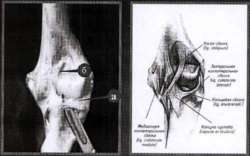Кольцевая и косая связки локтевого сустава.
