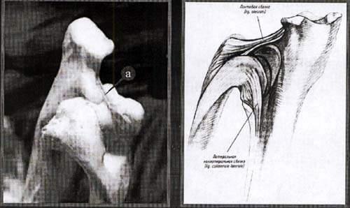 Локтевая связка локтевого сустава.