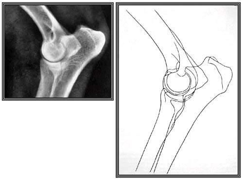 Конгруэнтность суставных поверхностей сочленяющихся костей.