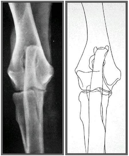 Кранио-каудальная поверхность. Визуализируется мелкоячеистая структура спонгиозного костного вещества эпифизов.