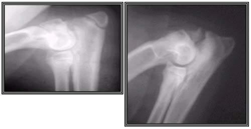 Этапные рентгенограммы. Визуализируется дисконгруэнтность суставных поверхностей и фрагментация pr. anconeus.